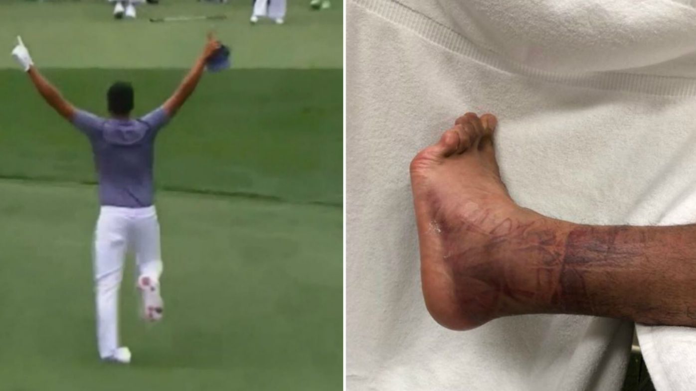Masters 2018: Extent of Tony Finau's gruesome injury revealed
