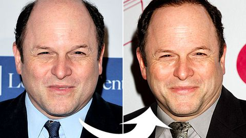 Jason Alexander explains his weird new hair