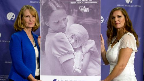 US woman burned as a baby reunited with nurse who cared for her 38 years later