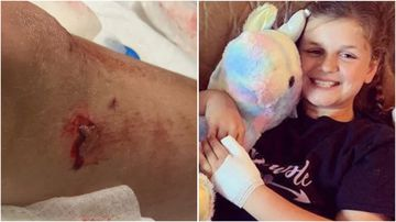 Peyton Shields was at a Florida Beach for her birthday when she was attacked by a shark.