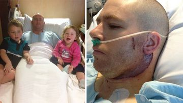 Father-of-two Lucas Ridgway had all the lymph nodes removed from left side of his neck after being diagnosed with a stage 3 melanoma in 2015.