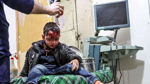 A wounded child is treated in a hospital in eastern Ghouta. (AP).