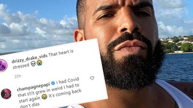 Drake reveals he suffered from hair loss after contracting COVID-19.