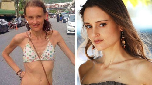 Former Melbourne model and ballerina with rare 'cocoon syndrome' has NDIS claim rejected