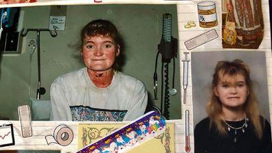 She was born with the debilitating condition EB.