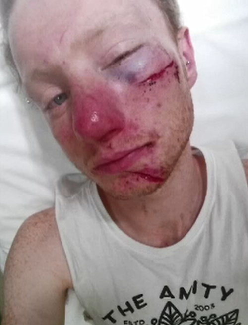 Bashgen Bloomfield, 21, had to take time off work following the brutal assault. (9NEWS)
