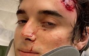 'I had my hands up': US veteran shot by police during protest despite surrender