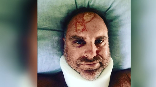 Matthew Hayden was in a neck brace for a month as his vertebrae healed.