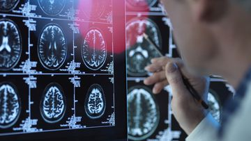 A new low-cost blood test could help detect Alzheimer's disease decades before symptoms appear. Alzheimer's disease dementia medicine medical health doctor