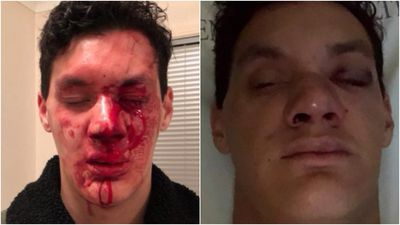 University student savagely bashed by 'laughing thugs'