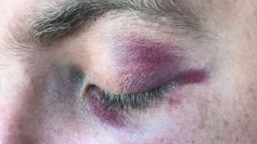 The officer received several facial injuries after being kicked in the face. (Supplied)