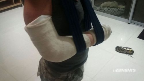 Ms Barrett said the blow knocked her onto a park bench and she broke her elbow. (9NEWS)