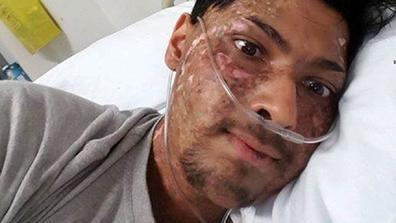 Nikhil Autar has beaten cancer three times.
