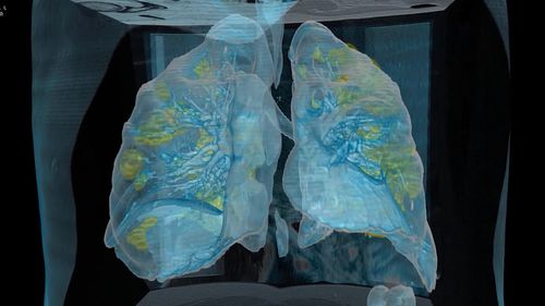 A top hospital in Washington, D.C. has released the first images of a coronavirus patient's lungs, in an unprecedented 3D video. The imagery shows extensive damage to an otherwise healthy, 59-year-old male who was asymptomatic until two to three days ago, said Keith Mortman, the chief of thoracic surgery at George Washington University Hospital.