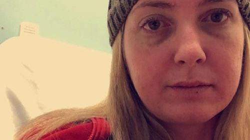 Sarah Joyce contracted meningococcal in 2016 and defied doctor's expectations to survive.