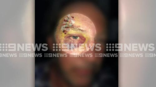 The man's daughter has accused police of using excessive force. (9NEWS)