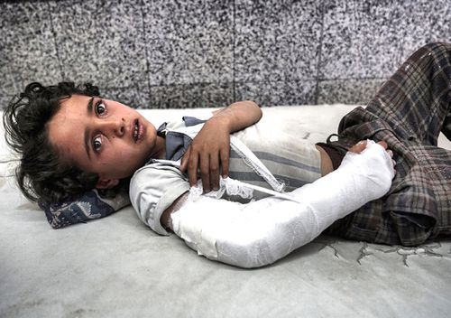 A young Yemeni boy lies in the emergency room awaiting treatment. (Getty)