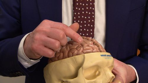 Prof Cook said Mr Strain's frontal lobe, which controlled mood and behaviour, did not work properly after a seizure.