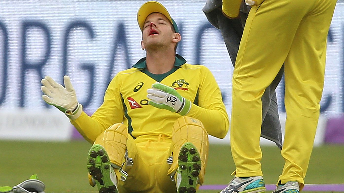 Australian cricket captain Tim Paine gets stitches after hit in ODI loss to England