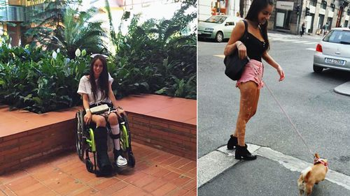 Glenda Merlini pictured before and after her accident. (Photos: Supplied)