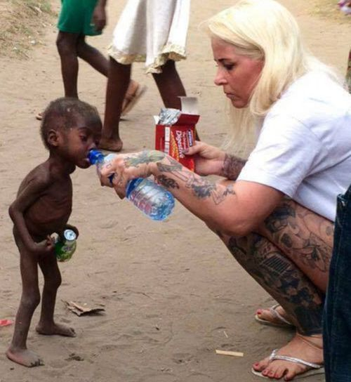 Aid worker saves Nigerian toddler accused of witchcraft from brink of death