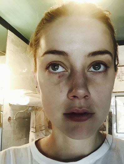 "In this undated photo released by London's High Court, showing Amber Heard displaying injuries said to have been sustained during an incident in which actor Johnny Depp has admitted to ""accidentally"" head butting her at their Los Angeles penthouse."