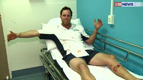 Mr van Burck said he was bitten by a one-metre reef shark. (9NEWS)