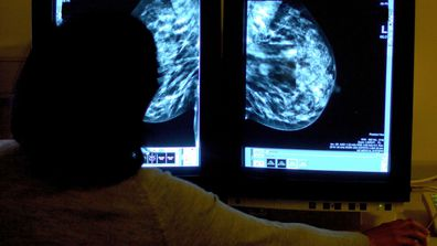 The errors date back to breast screenings in the UK as far as 2009.