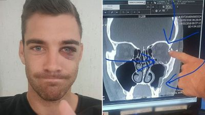Bachelorette star 'may never feel his face' after one punch attack