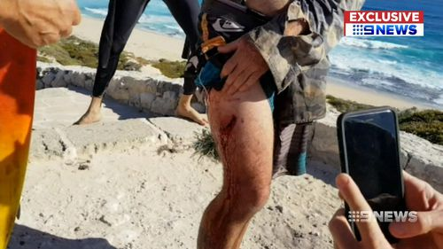Mr Longrass said the shark left a tooth in his thigh. (9NEWS)