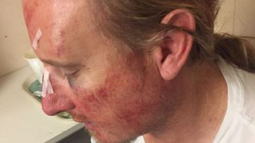 Cruise ship brawl leaves passenger with horror facial injuries