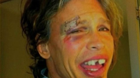 Steve Tyler performed on stage the day after doing this to his face