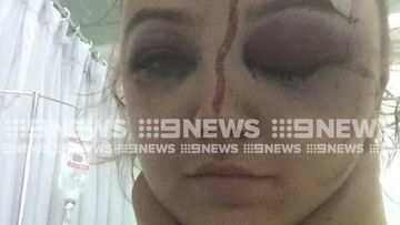 Emma Bell has broken cheek bones and bleeding on the brain after a violent bag snatch in Bali.