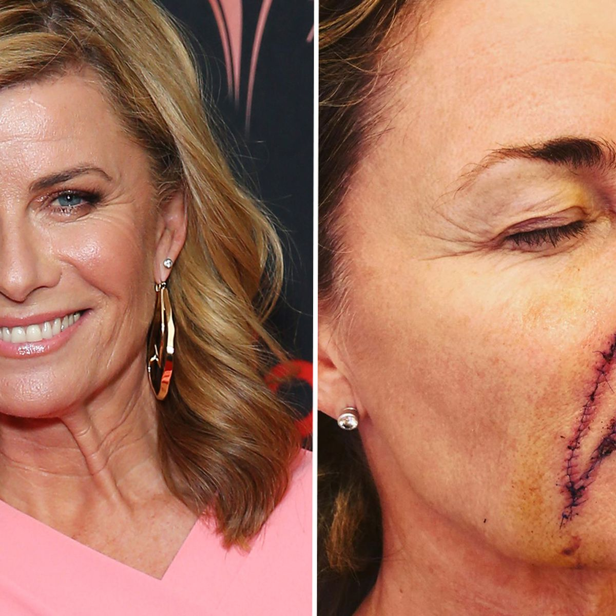 Deborah Hutton Has Major Surgery To Remove Two Skin Cancers Shares Photo To Urge Aussies To Get Checked 9celebrity