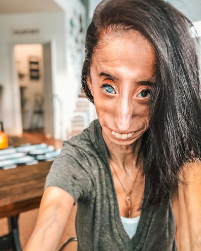 Lizzie Velasquez became an anti-bullying activist at 17 after a YouTube video called her the 'World's Ugliest Woman'.