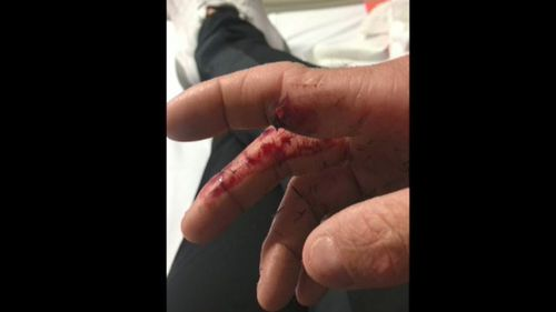The NRL player posted a graphic photo of his fractured index finger, showing that the bone had pierced the skin. Picture: Instagram.