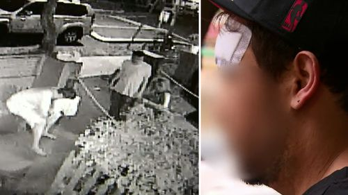 CCTV footage from the scene (left), and the backpacker's injuries (right). (9NEWS)
