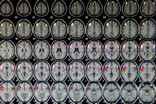 Brain scans captured by a medical imaging instrument.