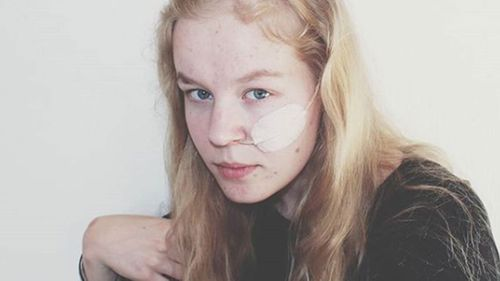 Noa Pothoven suffered from post-traumatic stress disorder, depression and anorexia.