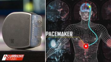 New study looks into treating OCD with pacemakers
