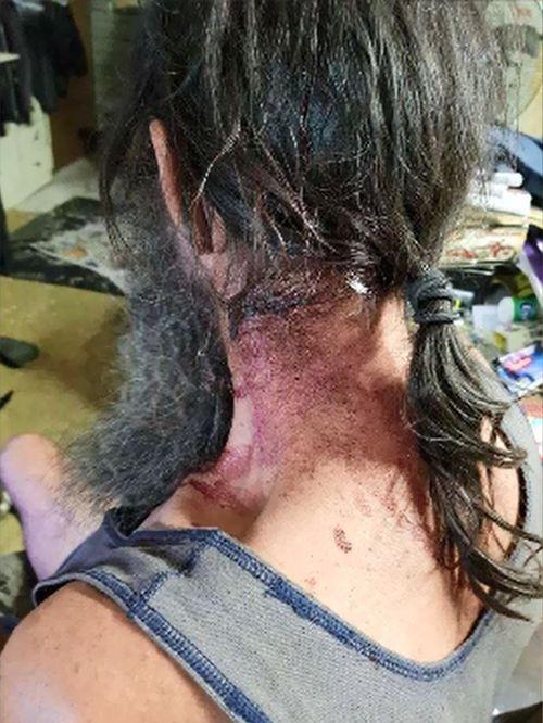 Mr Jenkins said his neck had been injured.