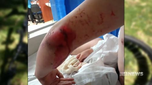 He suffered a deep cut to his elbow and shards of glass in his back.