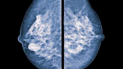 """'My """"young"""" breasts disguised my cancer'"""
