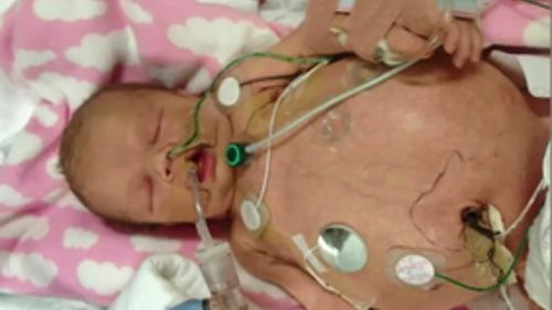 Aubree Lehner had both her kidneys removed within two weeks of her life. (9NEWS)
