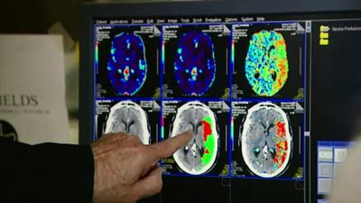 Groundbreaking stem cell research could help stroke victims