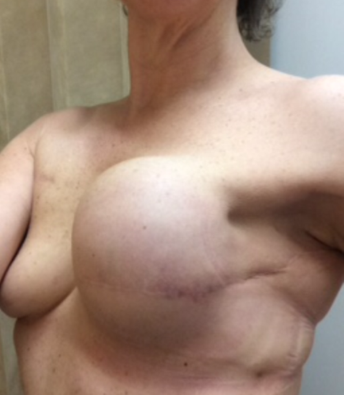 Aussie breast cancer survivors are upset over Facebook's ban on photos of their mastectomies and reconstructions
