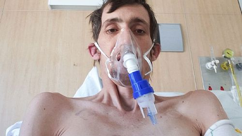 Anthony White became the face of the silicosis crisis after speaking out about his case last year.
