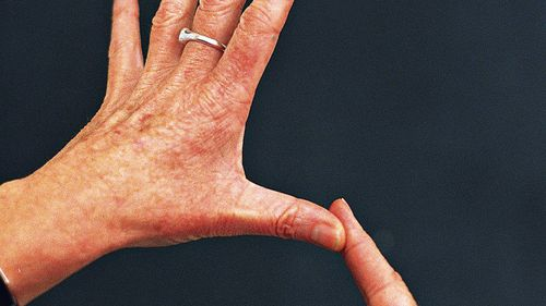 International Day of Sign Languages aims to raise awareness about the linguistic and cultural identity of deaf people.