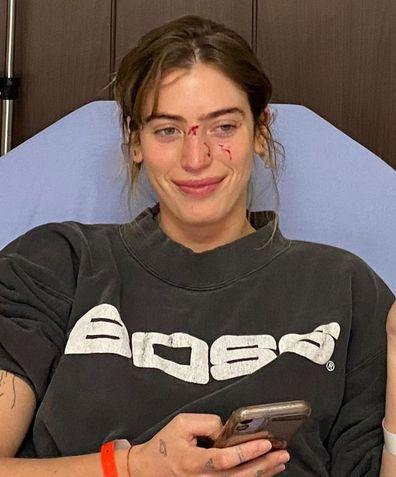 Ewan McGregor's daughter Clara McGregor bitten by dog before movie premiere.