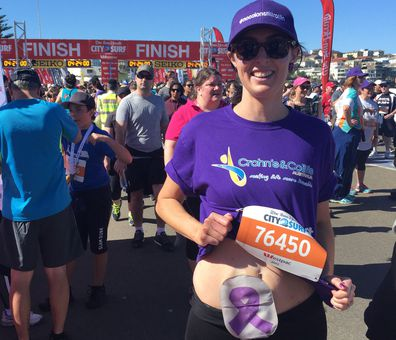 Sam Abarca, pictured running the City to Surf, had her bowel removed due to ulcerative colitis, but a new drug called Golimumab, branded as Simponi, could help patients avoid that.